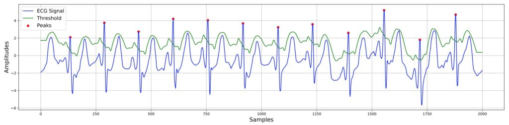 Биометрическая аутентификация по ЭКГ